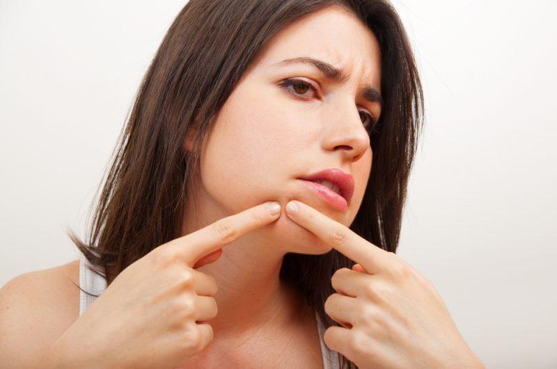 Cómo curar y eliminar acné y espinillas rápidamente