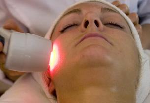 Blanqueamiento de la piel con láser